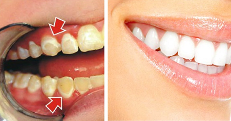 Будьте своим собственным стоматологом! Смотрите, как удалить зубной налет всего за 5 минут!