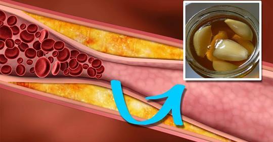 Природные способы снижения уровня плохого холестерина всего за 4 дня