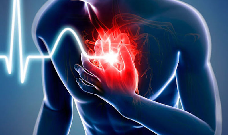 Схема действий при сердечном приступе: эти рекомендации могут спасти жизнь