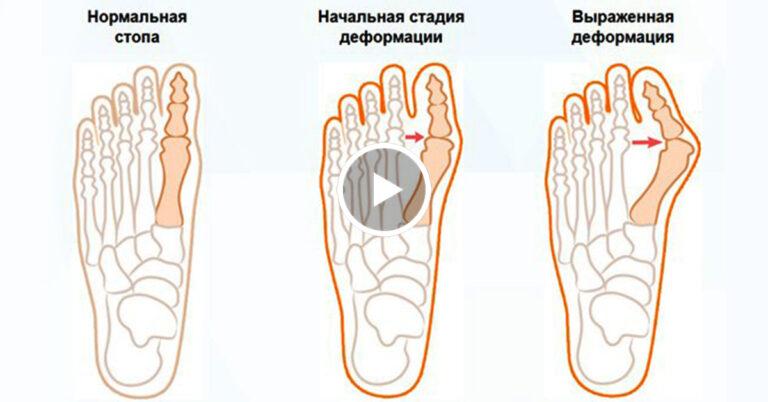 как поставить стопы бинанс